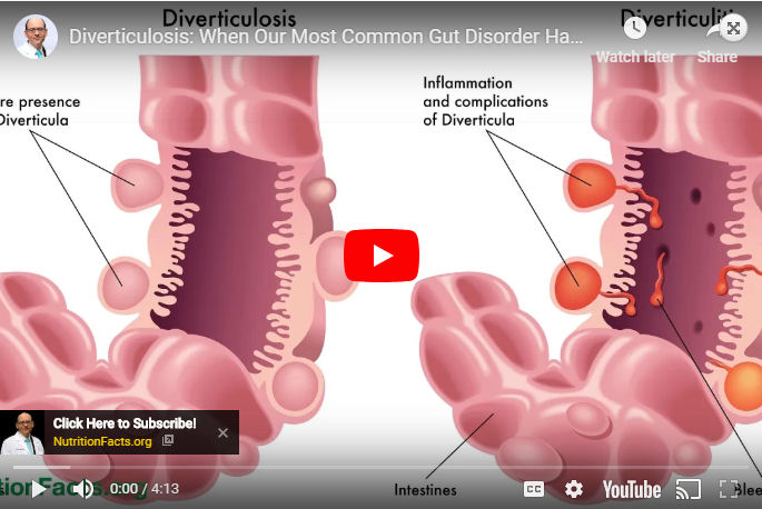Diverticulosis: When Our Most Common Gut Disorder Hardly Existed