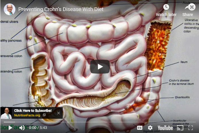 Preventing Crohn's Disease With Diet
